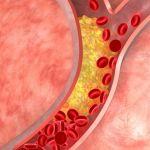 High cholesterol build up